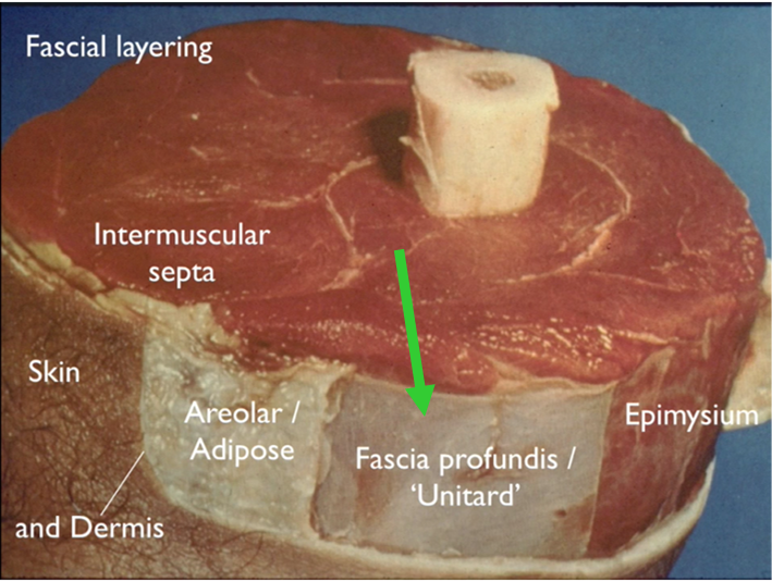 Fascia Profundis is like a suit under our skin.
